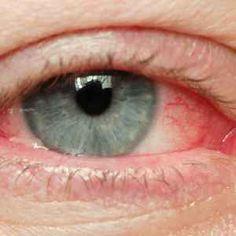 pontmasszázs a látás javítása érdekében