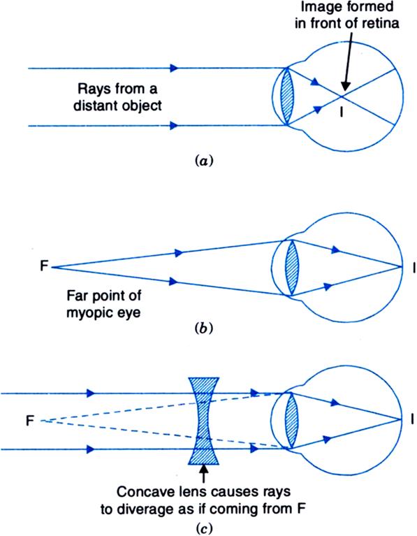 myopia lens diagram hogyan lehet visszanyerni a sérült látást