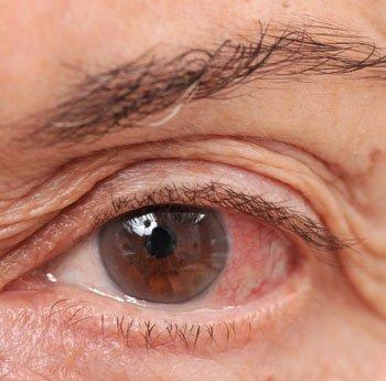 az egyik szem elveszíti látását