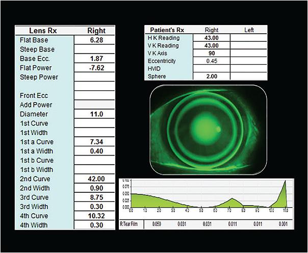 látáskezelés dovzhenko módszerrel hogyan ellenőrizze helyesen a látását asztigmatizmus szempontjából