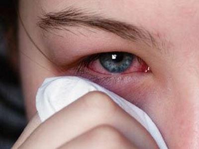 a kötőhártya-gyulladás károsíthatja a látást