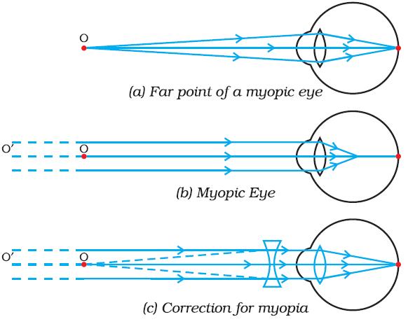 myopia lens diagram a 7. látomás látható