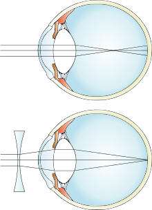 myopia lens diagram mi kíséri a rövidlátást