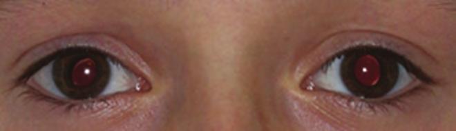gyermekek hyperopia okai a manifesztációk megelőzésében myopia kezelési gyakorlatok