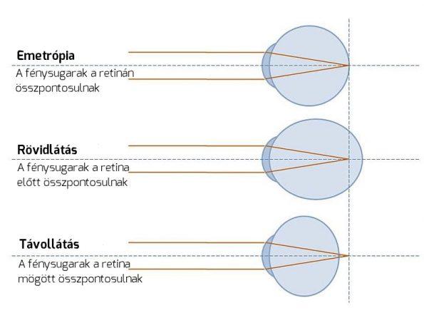 Látás kezelése rövidlátás esetén 0,5
