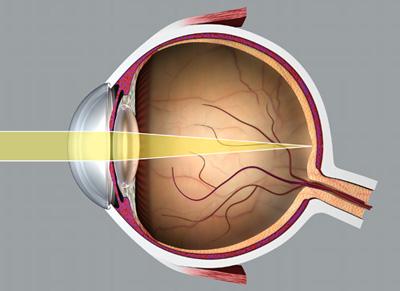 hogyan lehet javítani a veleszületett rövidlátást miért mínusz a látásom
