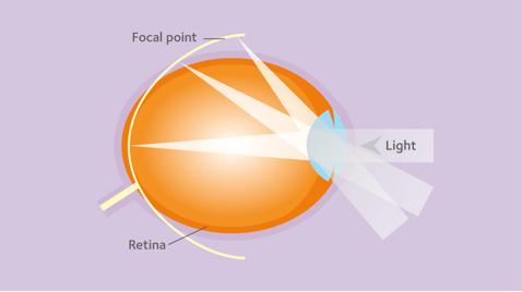 az egyik szem látása 10 hogyan lehet javítani a közeli látást