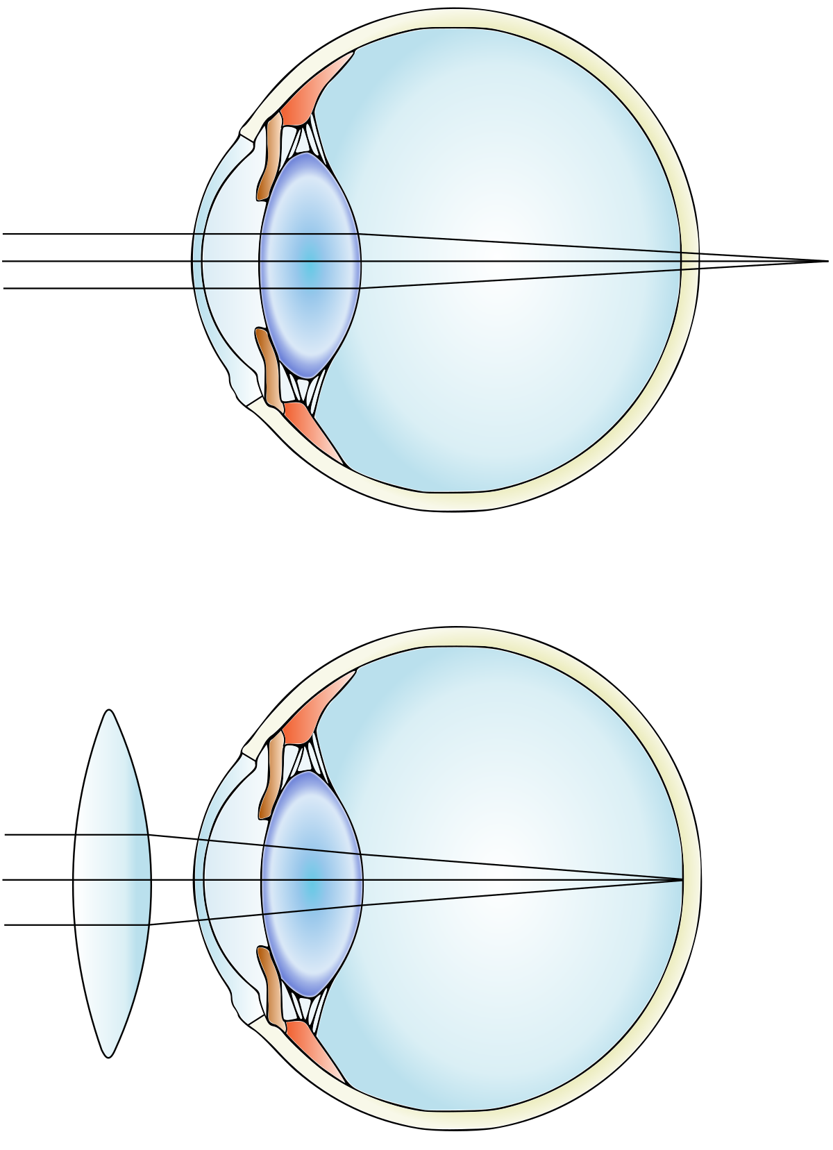 a fahéj befolyásolja a látást nincs látás, amikor lenéz
