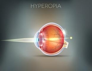 hyperopia plusz 2 miért álmodnak a látási problémák