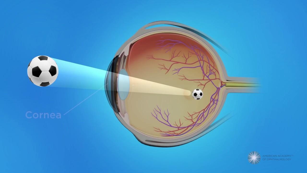 agydaganat látáskárosodása myopia gyenge kezelés