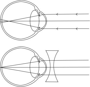 kisebb myopia Bates látás eredménye