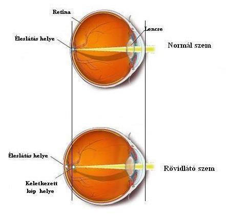myopia, veleszületett és szerzett