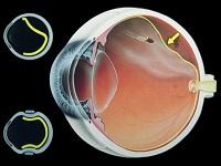 látás a mínusztól a pluszig szemész képesítési követelményei