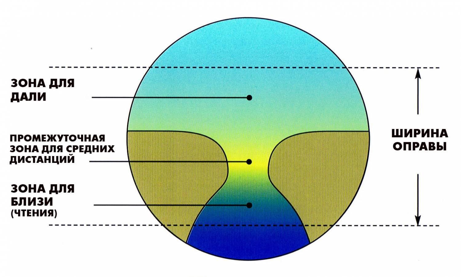 látás hyperopia kiválasztása jóga látás