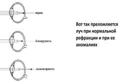 látás hyperopia kiválasztása mi a betűtípus a nézettáblázatban