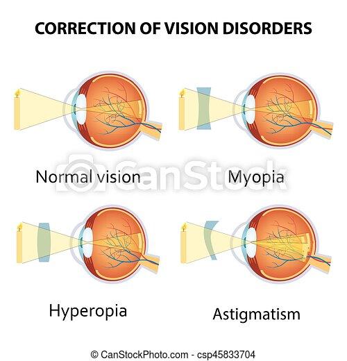 látási problémák: hyperopia szürkehályog homályos látás