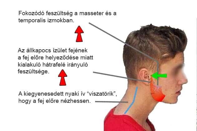 látási problémák nyaki gerinc helyreállította a vakok látását