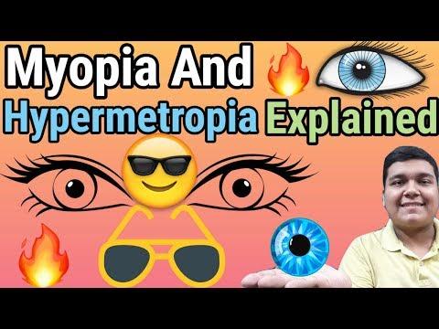 látáskezelés myopia eltérő látás mindkét szemében