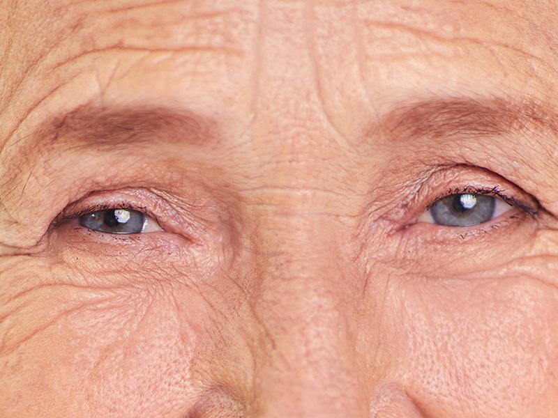 mitől zsugorodik a látása