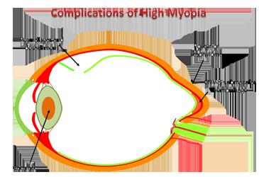 myopia and high myopia 3 soros látvány