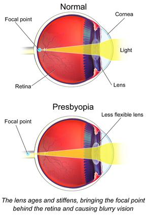 Látás távollátás myopia biológia 8. fokozat