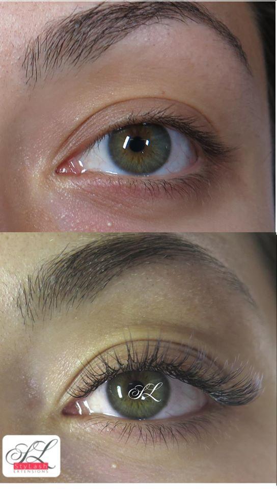 myopia kezelés atropinnal szenilis látás plusz és mínusz
