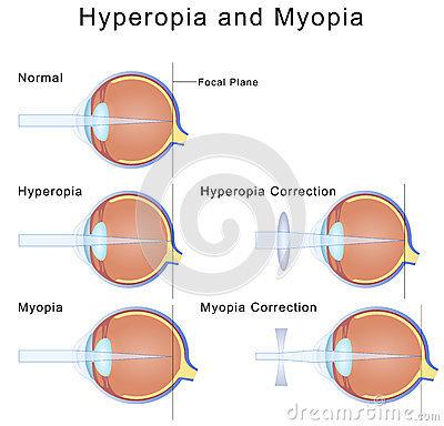 myopia és hyperopia testmozgással szemészeti coloboma