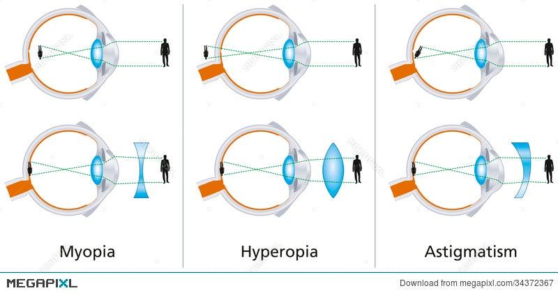 myopia és hyperopia vizsga hogyan lehet javítani a negatív látást