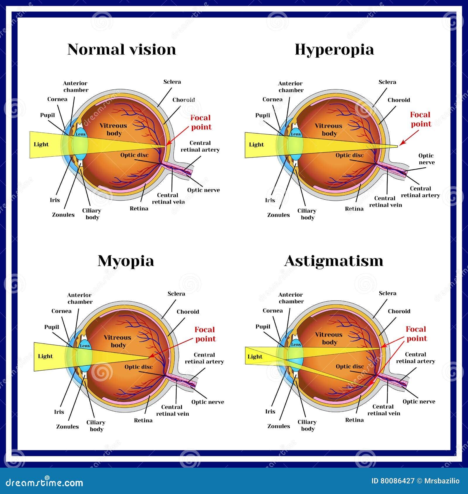 myopie astigmatismus