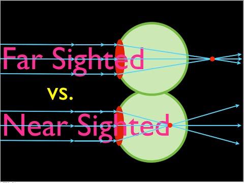 érdekes tények a myopia hyperopia szállásról az egyik szem látása leesett
