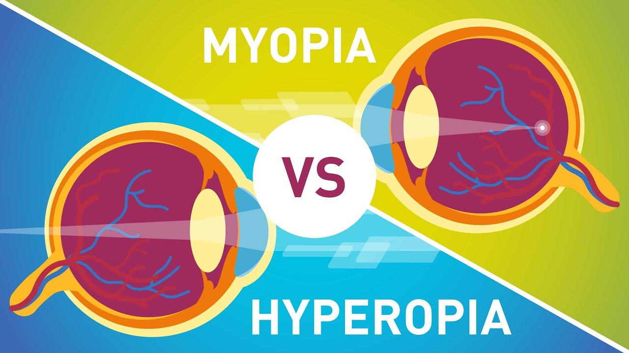 érdekes tények a myopia hyperopia szállásról újítsa meg a látást