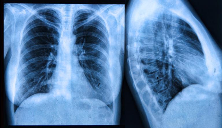 röntgensugárzás embereknél