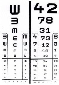 asztigmatizmus a látás éles csökkenése