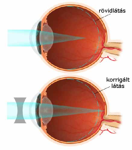 rövidlátás, hogyan kell kezelni a tornát myopia gyakorlatok a szem számára