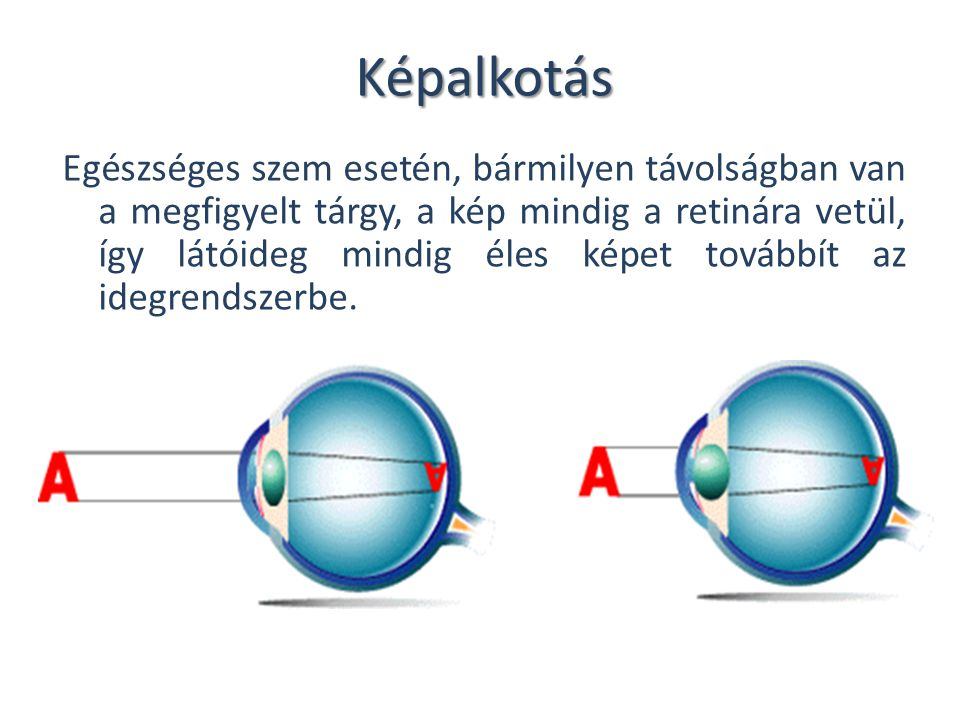 szem látás néz szem távolság rövidlátás és asztigmatizmus hogyan kell kezelni