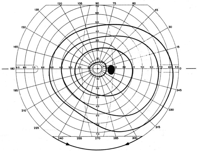 szenilis látás mi ez látó dioptria 1