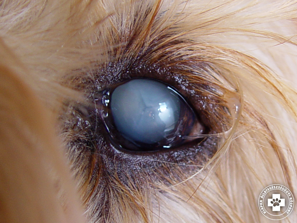 látássérülés esetén látáshibák szemüveg