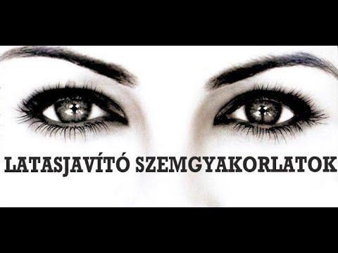 szemészeti piac legjobb gyakorlat a látás javítására
