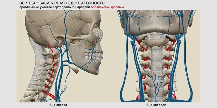 tirotoxikózis látása