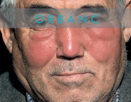 törött orrlátás az emberi látás mínusz plusz