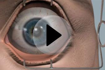 torna a látássérült szemek számára