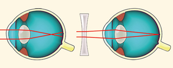 torna a rövidlátás szemére 9 gyakorlat a látáshoz