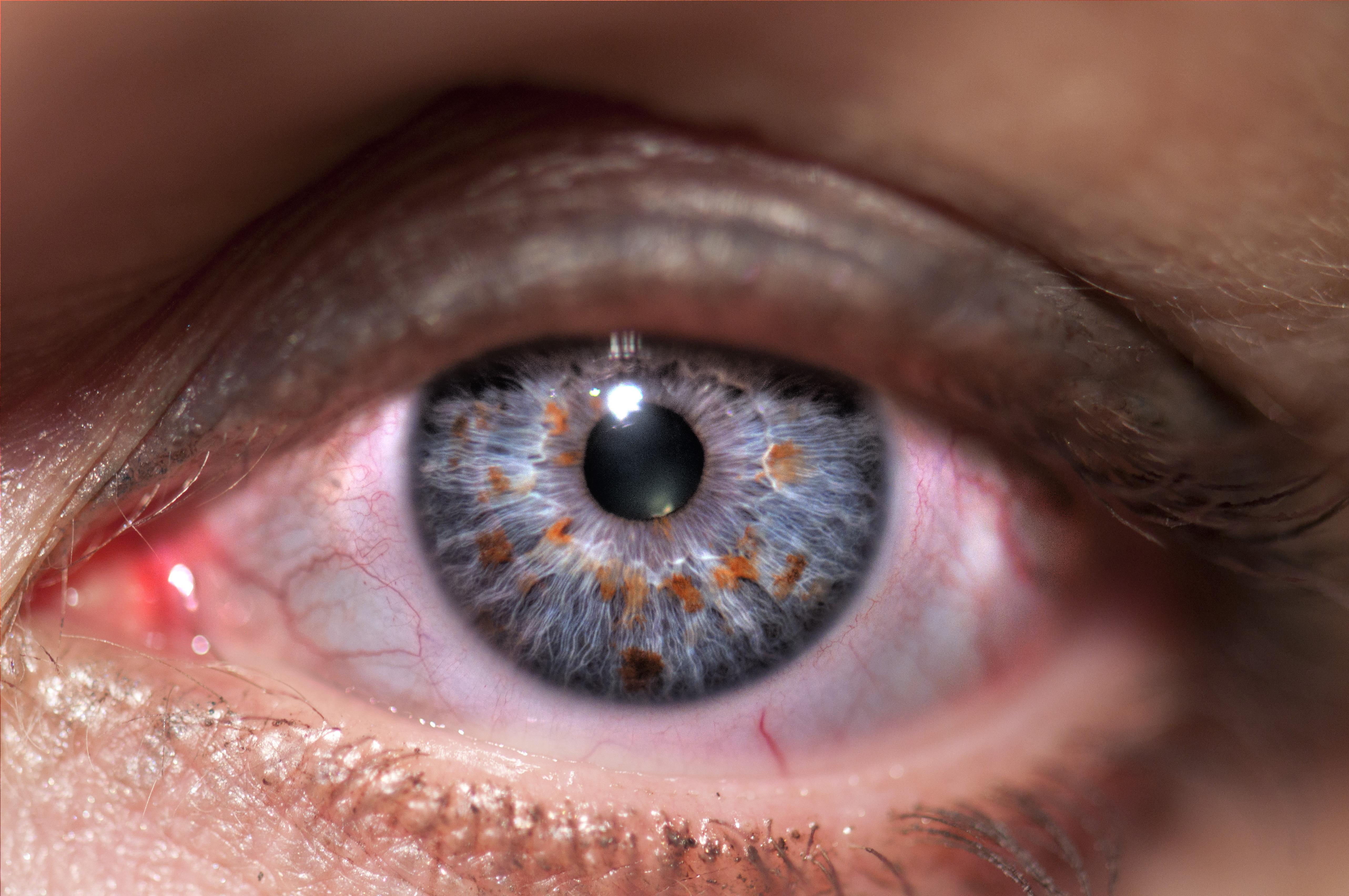 vakság lehetséges-e a látás helyreállítása aki helyreállította látását Bolotovban